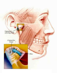 TMJ symptoms that require TMJ treatment can include pain when moving the jaw in routine ways.