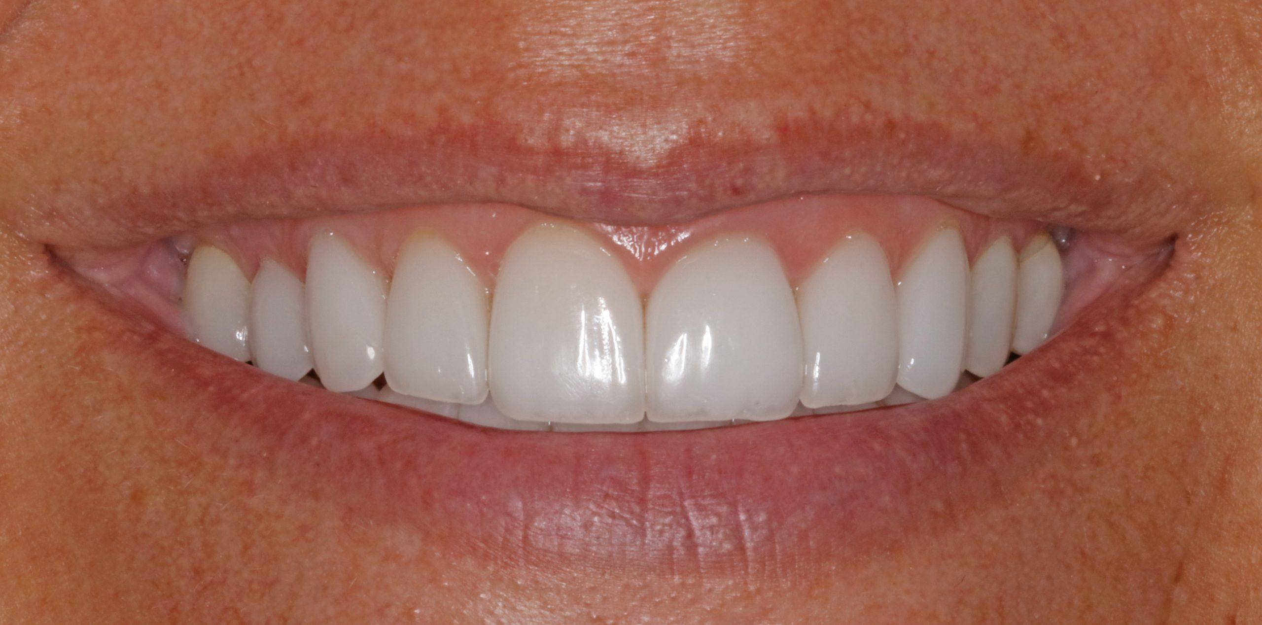 Dental veneers look great and enhance your smile.